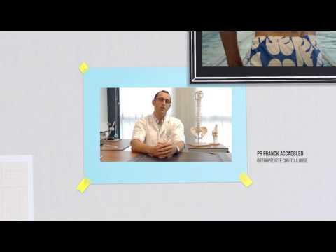 L'algodystrophie Ou Syndrome Douloureux Régional Complexe - Film Destiné Aux Professionnels De Santé