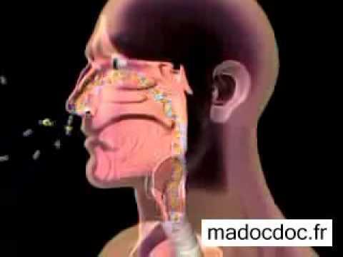 Crise D'asthme: Déroulement, Fonctionnement, Fin