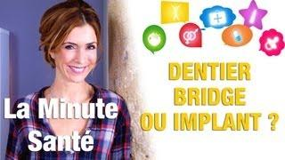 Dentier, bridge, implant : que choisir ?