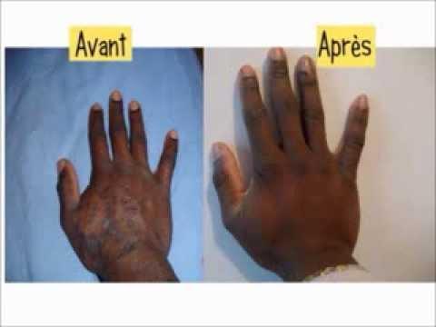 Traitement Eczema Traitement Naturel Comment Soigner L Eczéma Atopique Variqueux