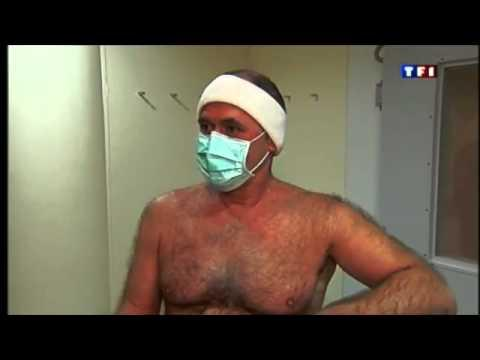 Cryotherapie Corps Entier Et Spondylarthrite Ankylosante