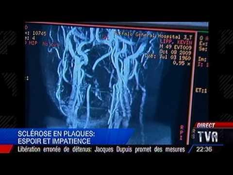 Sclérose En Plaques Et Insuffisances Veineuses.m4v