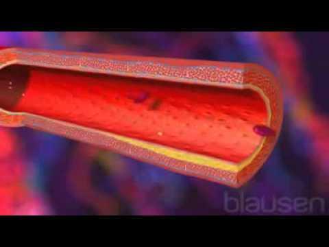 Infarctus Du Myocarde  Symptômes, Traitements, Signes Et Causes
