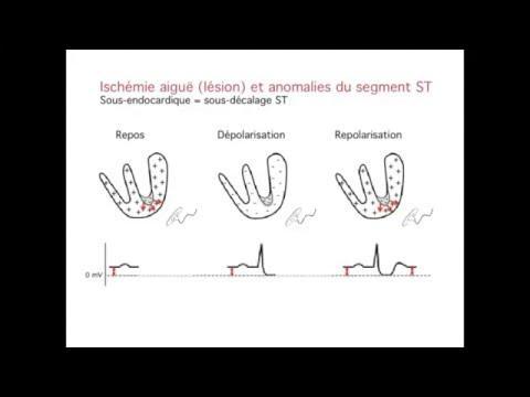 Electrocardiogramme (ecg) Infarctus Du Myocarde (idm) : Pourquoi Un Sus Décalage ST ?