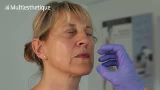 Docteur Jean-Marc Chardonneau – Médecin Esthétique
