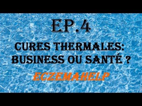 EP.4 Cures Thermales : Business Ou Santé ? - EczemaHelp
