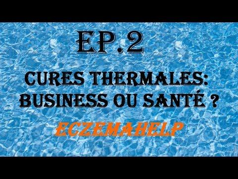 EP.2 Cures Thermales : Business Ou Santé ? - EczemaHelp