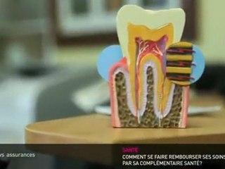 Dentiste : Les tarifs et vos remboursements sécu et mutuelle