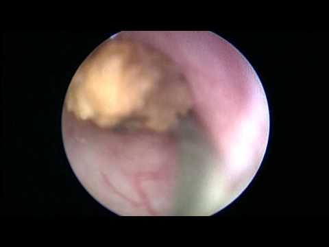 Urétéroscopie Rigide Avec Ablation D'un Calcul Urinaire