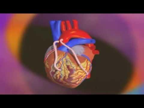 Le Pontage Aorto-coronarien