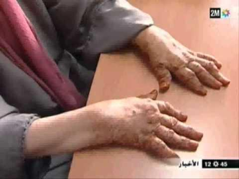 Reportage 2M Sur La Polyarthrite Rhumatoïde