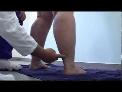 Le Lipoedème Est Curable: Le Dr. Med. M. E. Cornely Et Sa Méthode Opératoire