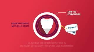 Mutuelle MNH: Les remboursements dentaires