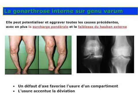 Traumatologie Gonarthrose