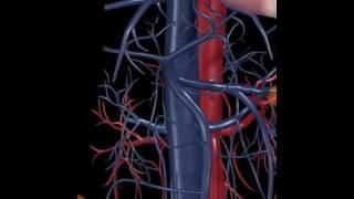 Hypertension artérielle : physiopathologie en 3D