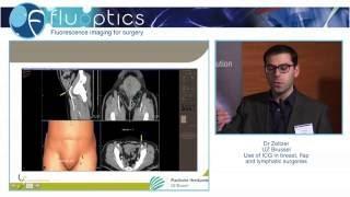 Dr. ZELTZER Assaf- Lymphedema surgery (chirurgie du lymphoedème) - LIFE CLINIC Bruxelles
