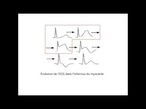 ECG Electrocardiogramme Ischémie Sous-endocadique Sus-décalage ST Onde Pardee Infarctus Myocarde