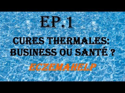 EP.1 Cures Thermales : Business Ou Santé ? - EczemaHelp