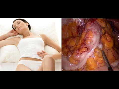Diverticulose Du Colon Sigmoïde : Maladie Et Chirurgie : Animation 3D