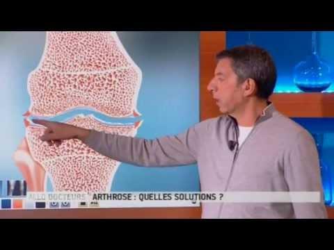 Qu'est-ce Que L'arthrose ? - Allô Docteurs