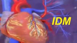 Infarctus du myocarde .IDM.