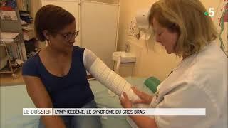 Le magazine de la santé   Lymphœdème, le syndrome du gros bras