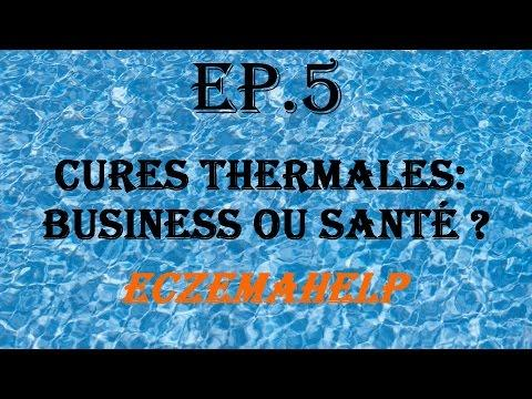 EP.5 Cures Thermales : Business Ou Santé ? - EczemaHelp
