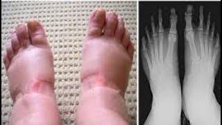 ATTENTION MESDAMES : Elle pense que ses pieds sont enflés à cause de la fatigue mais ce que le méd..