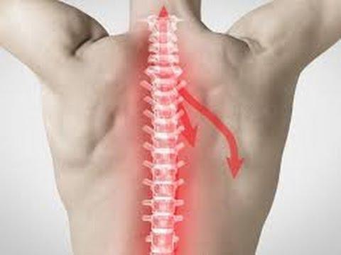 Un Médecin Révèle Comment Soulager L'arthrose Naturellement