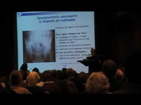 Spondylarthrite Ankylosante - Diagnostic - Pr M. Breban