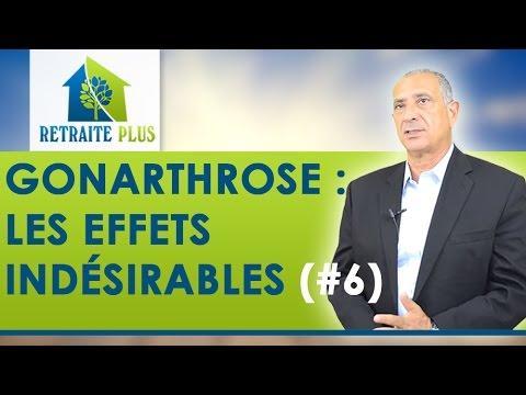Gonarthrose : Effets Indésirables Des Infiltrations De Corticoïdes - Conseils Retraite Plus