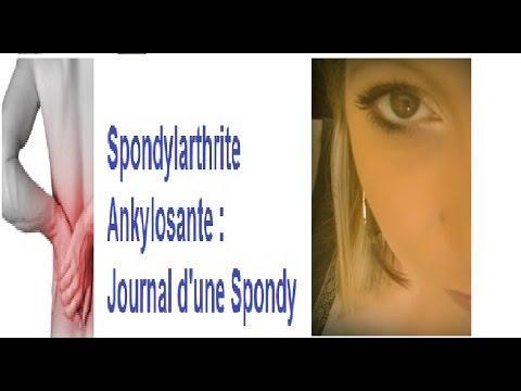 Spondylarthrite Ankylosante: Et Notre Moral Parlons En !