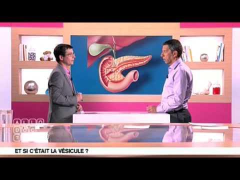 Calculs Du Pancréas Et Vésicule Biliaire
