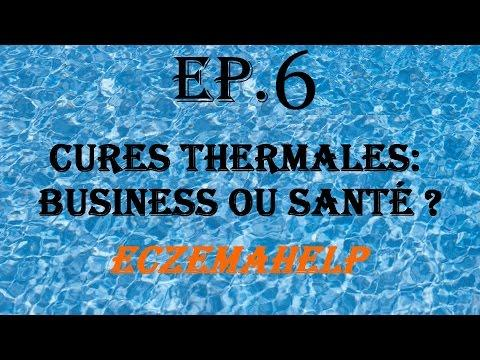 EP.6 Cures Thermales : Business Ou Santé ? - EczemaHelp