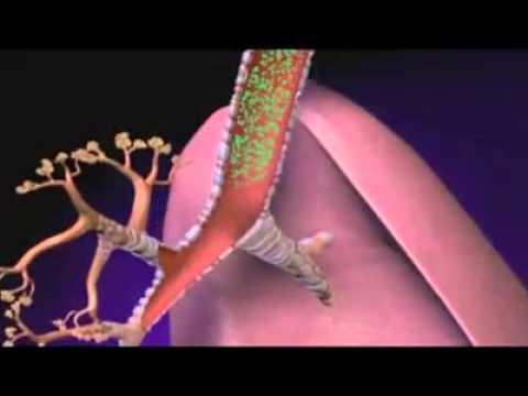 Les Bronchodilatateurs: Médicaments Utilisés Dans Le Traitement De L'asthme (le Spray Bleu)