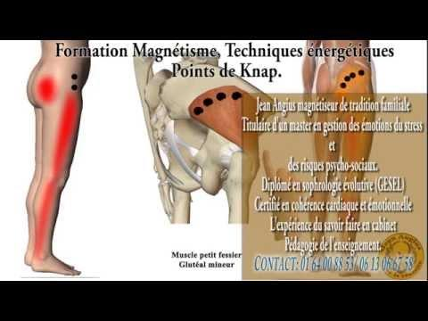 Manière De Traiter Douleur Et Sciatique Protocole Pour Magnétiser.