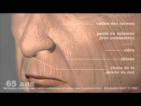 Signes Du Vieillissement De La Peau Sur Un Visage De Femme: Artmedica Montpellier