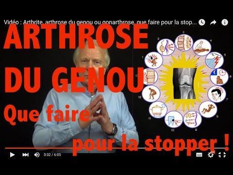 Vidéo : Arthrite, Arthrose Du Genou Ou Gonarthrose, Que Faire Pour La Stopper ?