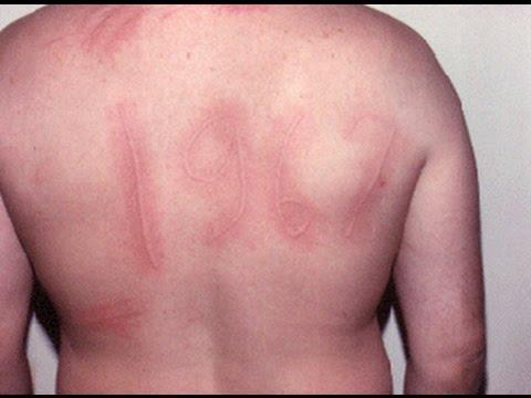 Allergies  L'urticaire