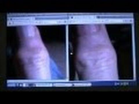 Guérison De L'arthrose Du Doigt - 1 - Rhumatisme / Heberden