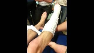 Bandage membre inférieur : n°3