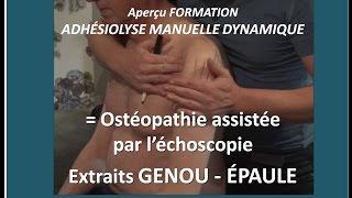 Ostéopathie épaule, genou : Libérer les Adhérences des fascias